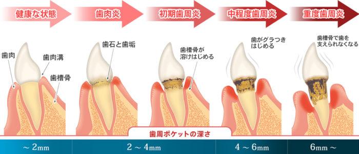 歯周病の進行状況