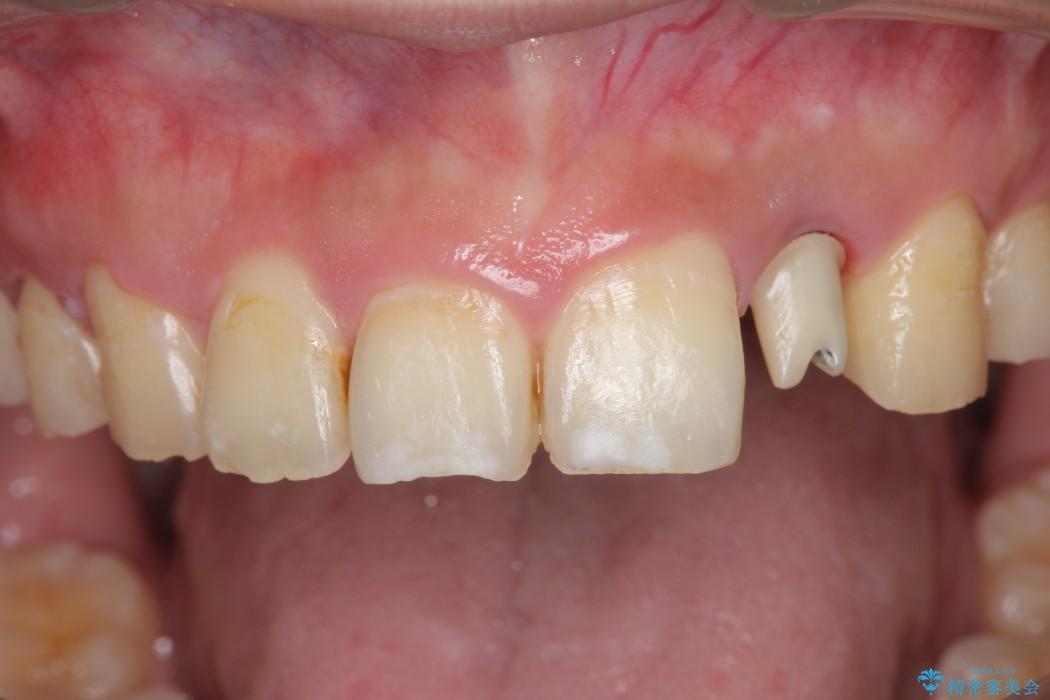 上の前歯のインプラント治療 治療中画像