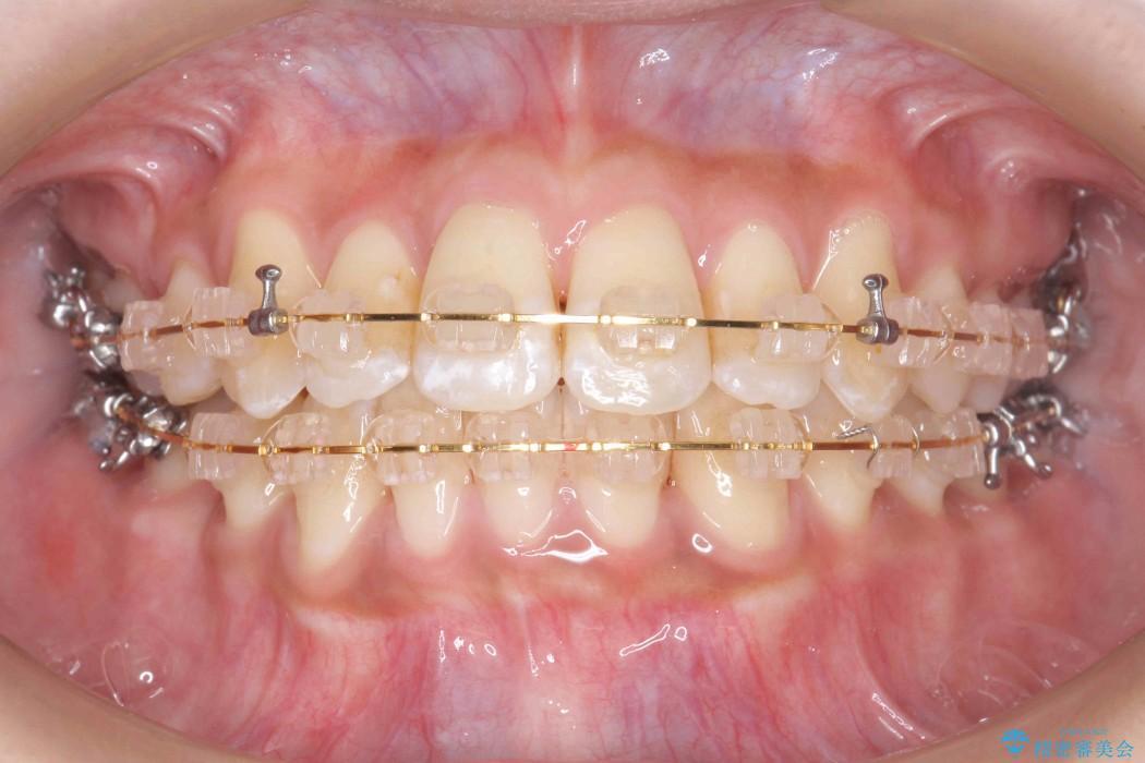天然歯を活かす、スレ違い咬合矯正 治療中画像