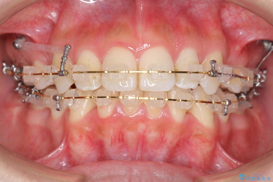 出っ歯(オーバージェット10mm)のワイヤー矯正 治療中画像