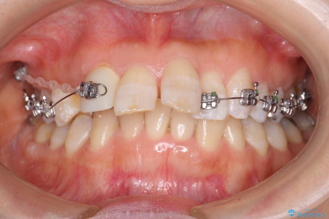 気になる前歯を矯正とセラミックの低予算治療 治療中画像