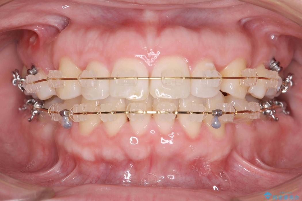 30代女性 出っ歯の再矯正治療 治療中画像