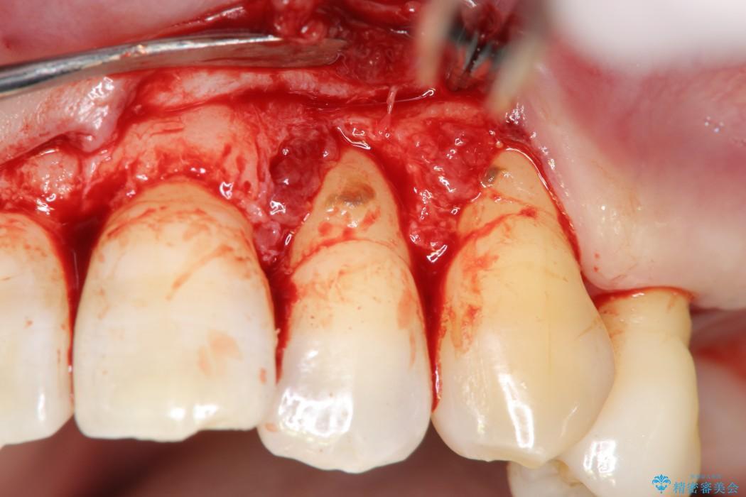 エムドゲインを用いた中等度歯周病治療 治療中画像