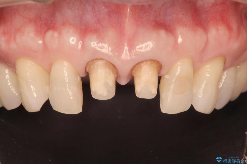 感染根管治療を伴った前歯のセラミック治療 治療中画像