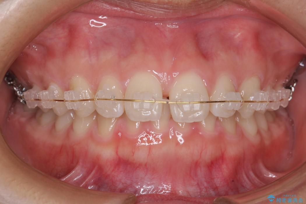 前歯のすき間と過蓋咬合のワイヤー矯正 治療中画像