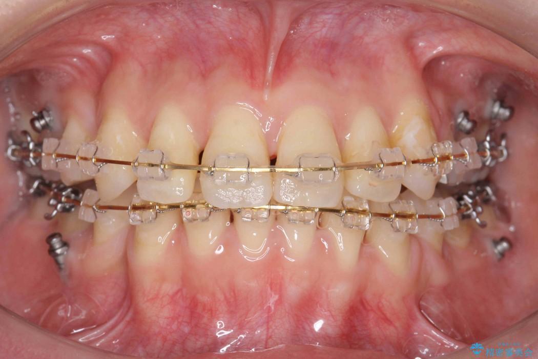 反対咬合(奥歯)のワイヤー矯正治療 治療中画像