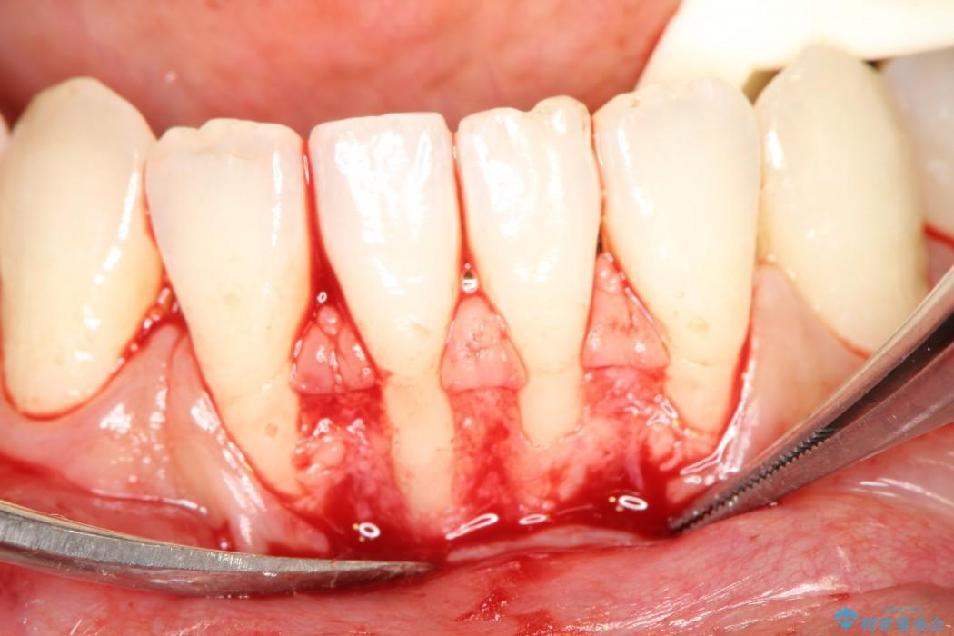 歯ぐきの再生治療 治療中画像