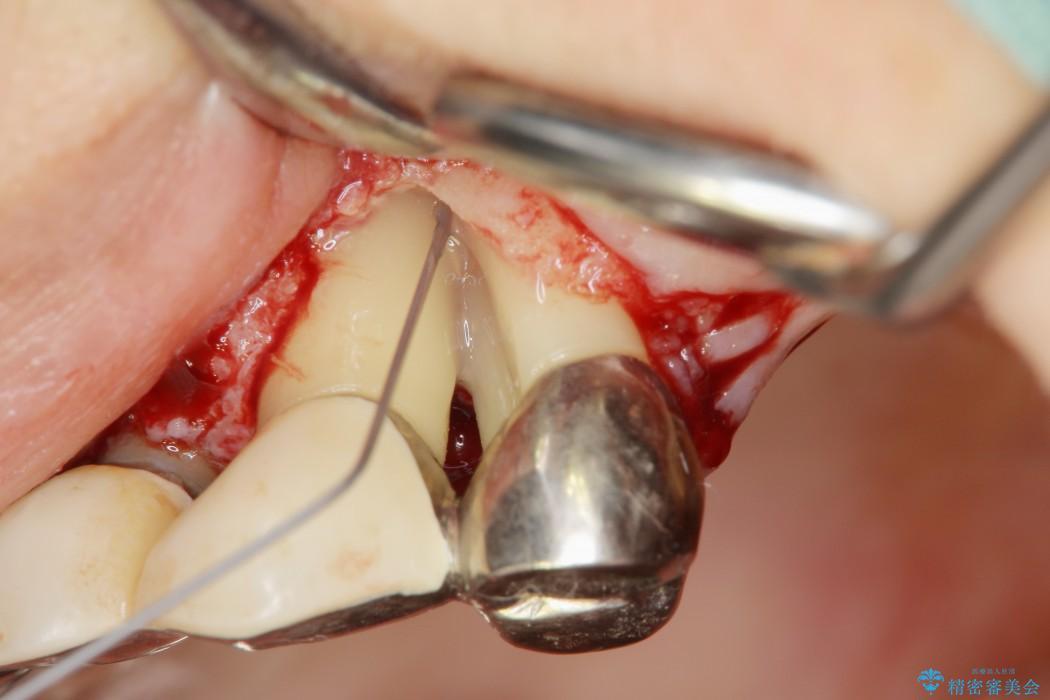 重度歯周病治療(歯槽骨の再生治療) 治療中画像
