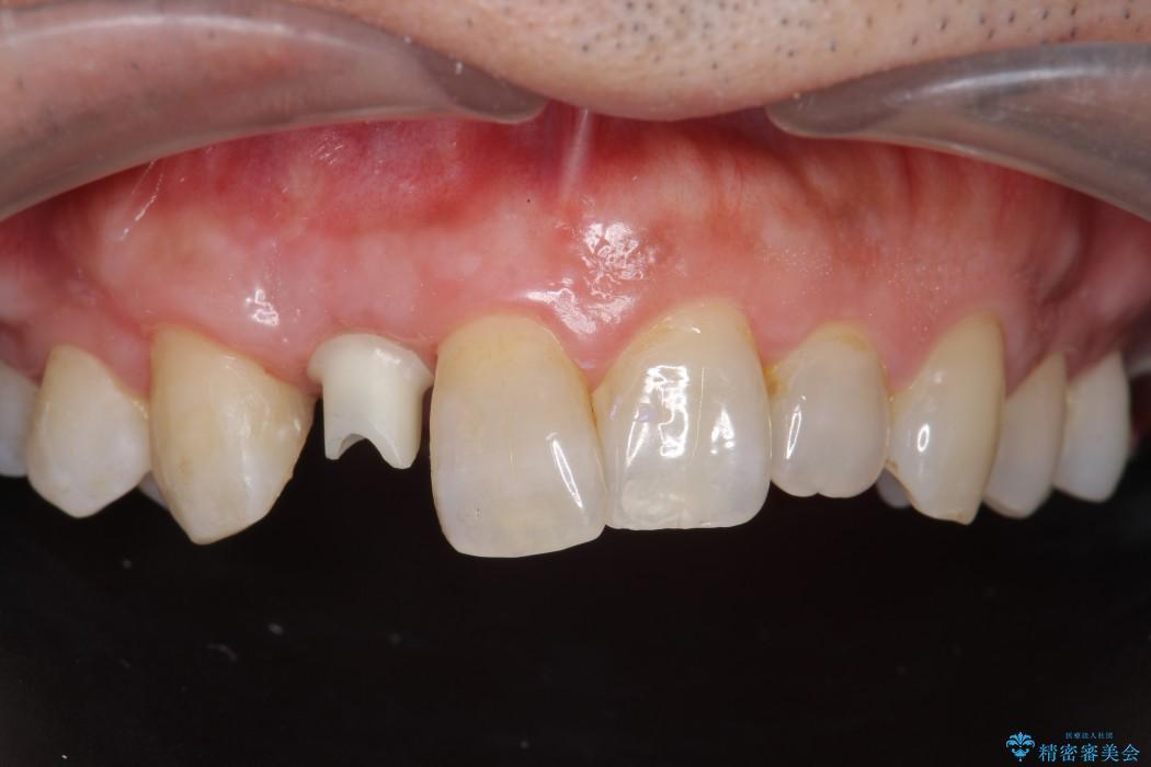 前歯のインプラント治療(セラミック治療編) 治療中画像