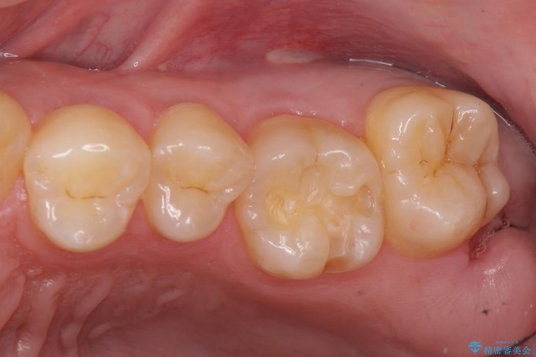 上の奥歯のゴールドインレー 治療中画像