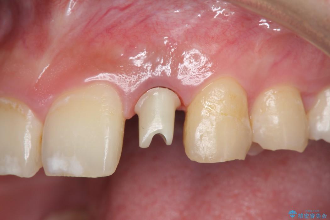 左上前歯のインプラント治療(セラミック治療編) 治療中画像