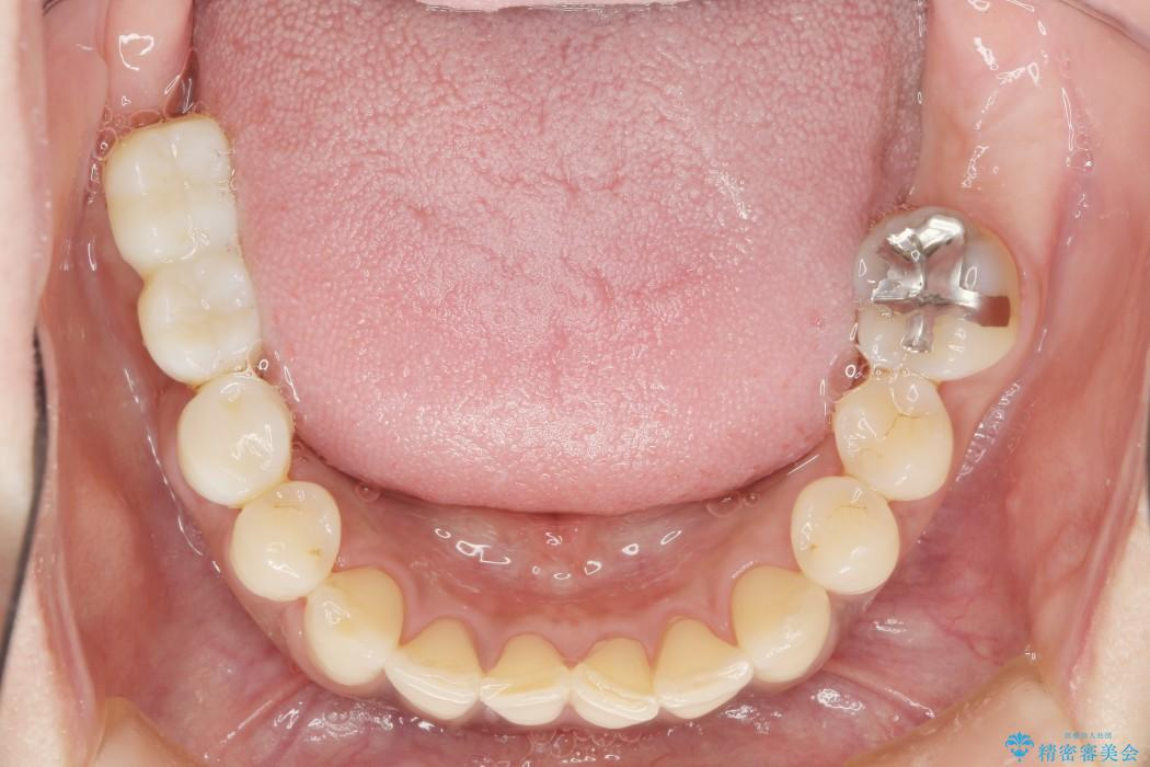 インプラントを用いた重度歯周病治療 治療中画像