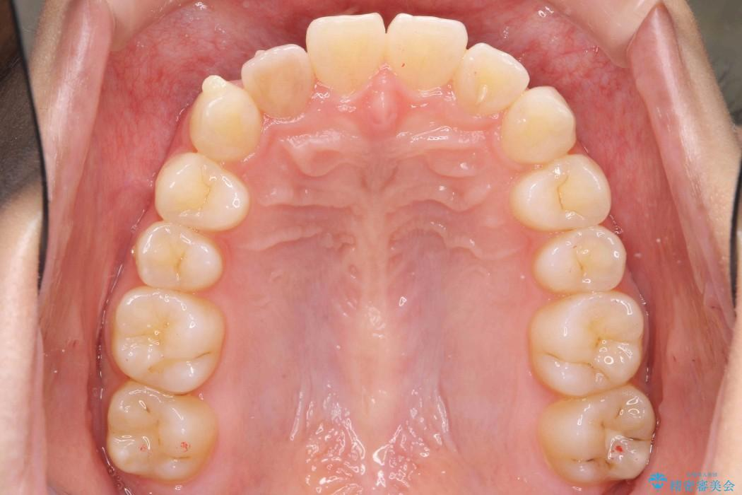 インビザラインで再矯正治療と右上前歯のセラミック治療 治療中画像