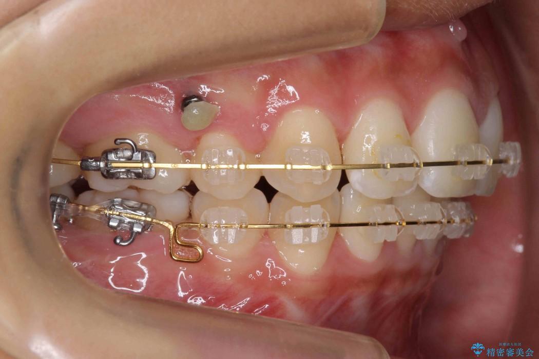 他院で治療した出っ歯の再矯正 治療中画像