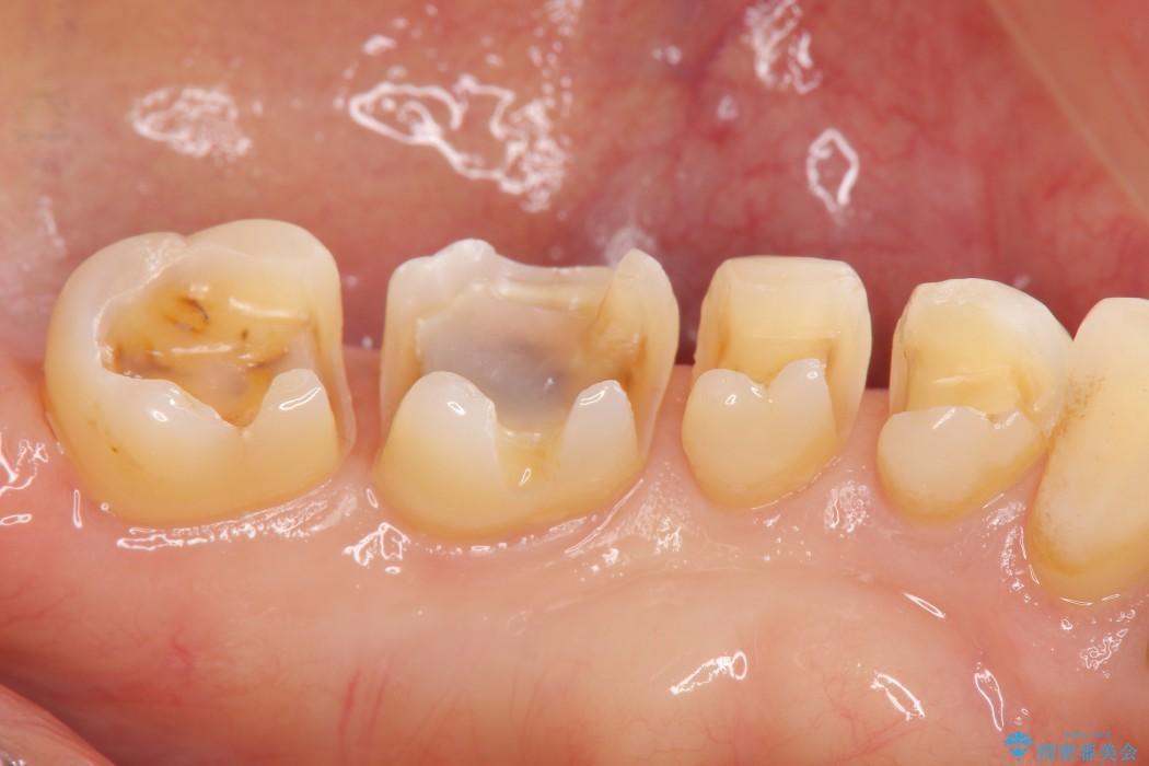銀歯を白くするセラミックインレー 治療中画像