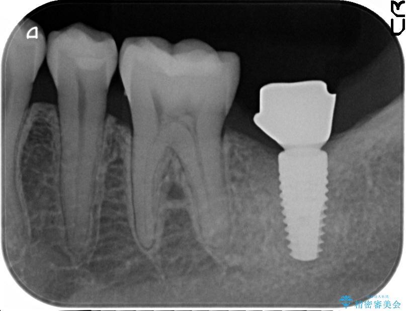 奥歯のストローマン・インプラント 治療中画像