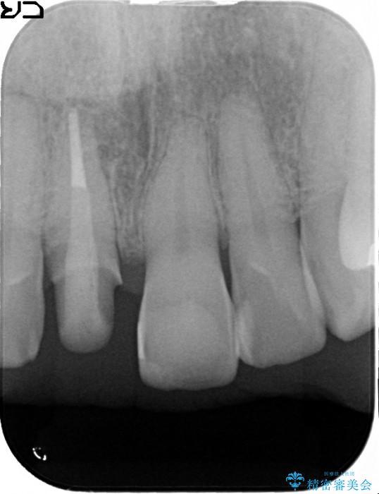 神経が無い歯のセラミック治療 治療中画像