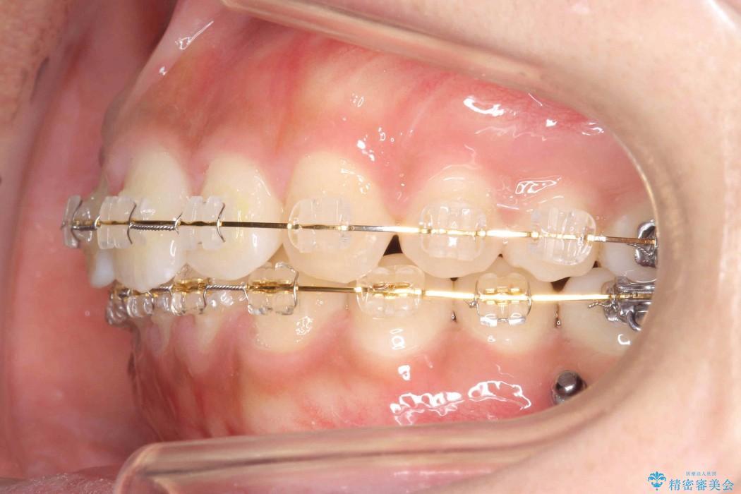 20代女性 すきっ歯の矯正歯科治療 治療中画像