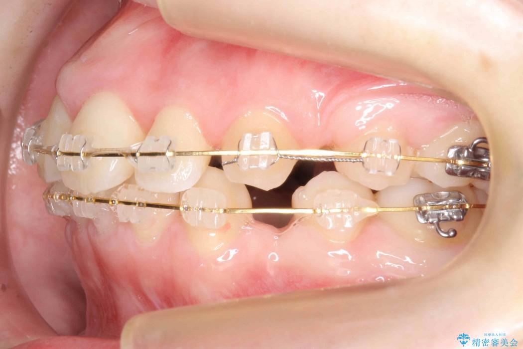 前歯のねじれと出っ歯の矯正 治療中画像