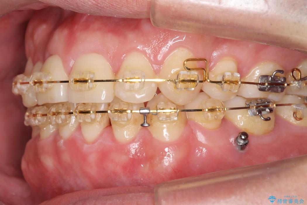 前歯のガタガタと奥歯の噛み合わせの矯正 治療中画像