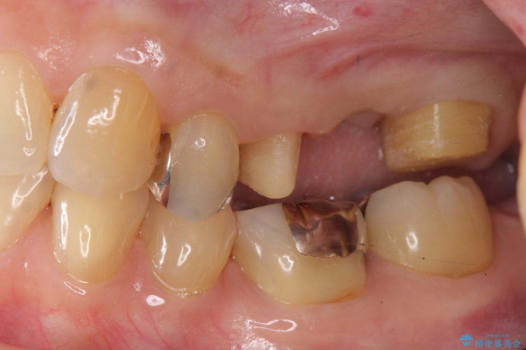 大きな穴があいた奥歯のブリッジ治療 治療中画像