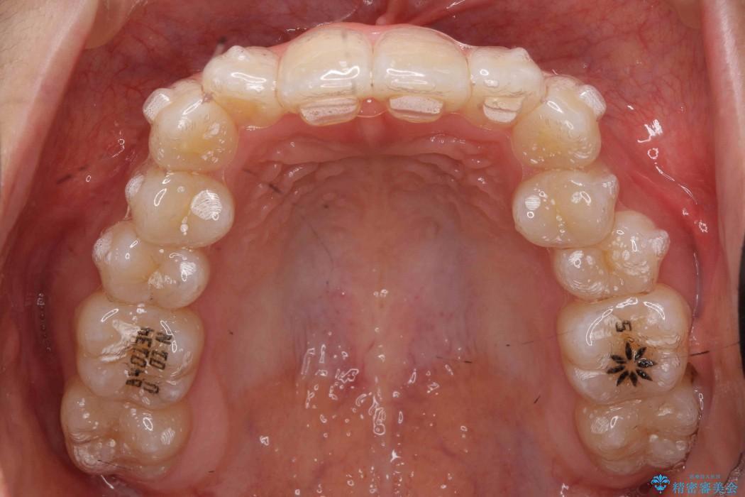 前歯の叢生のインビザライン矯正 治療中画像