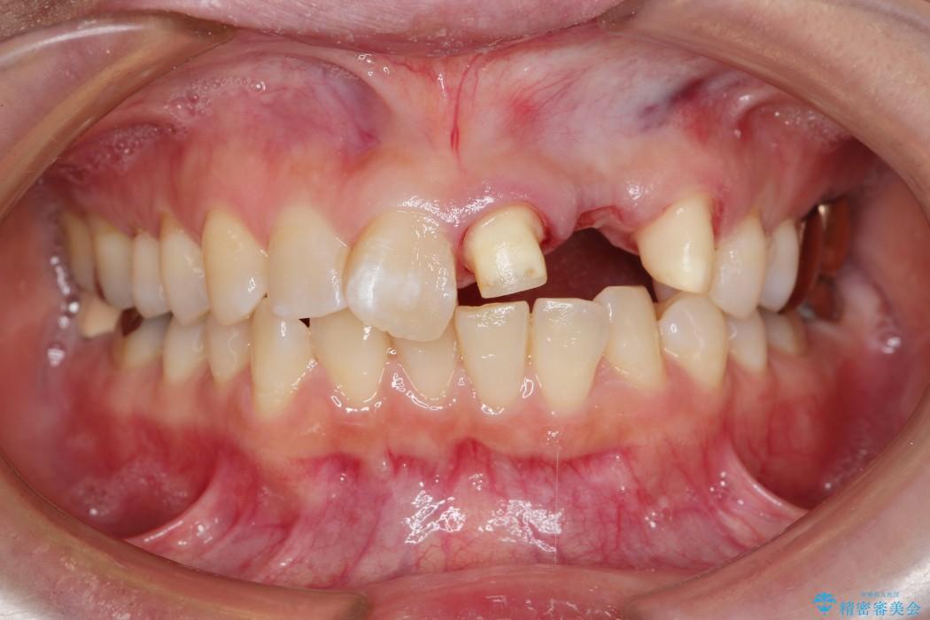 グラグラする前歯のブリッジ治療 治療中画像
