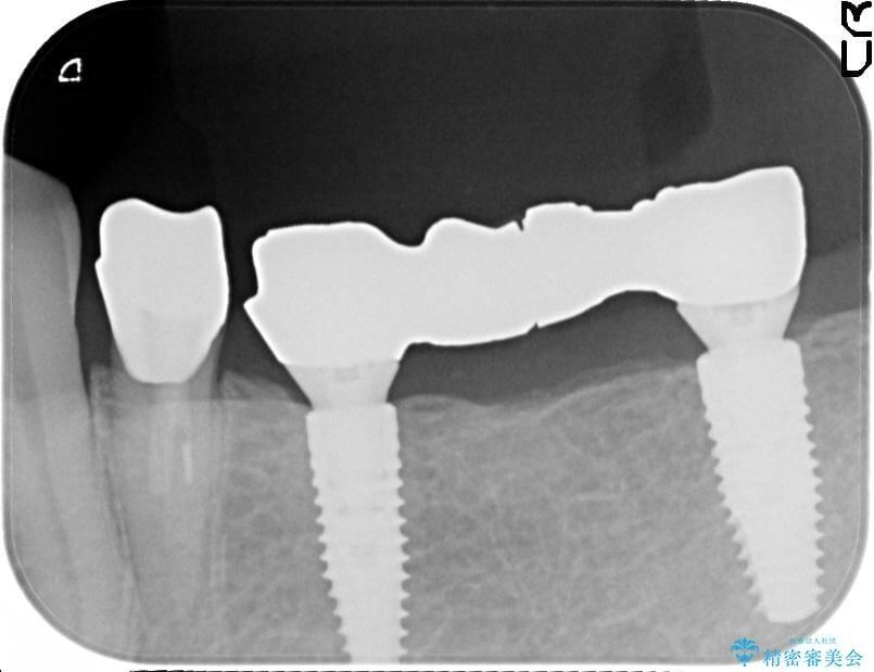 ストローマン社製インプラントによるブリッジ治療 治療中画像