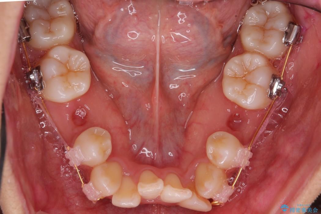 根の短い歯を抜歯 がたがたの歯並び矯正 治療中画像