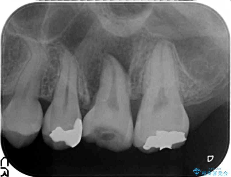 奥歯の親知らず移植 治療中画像