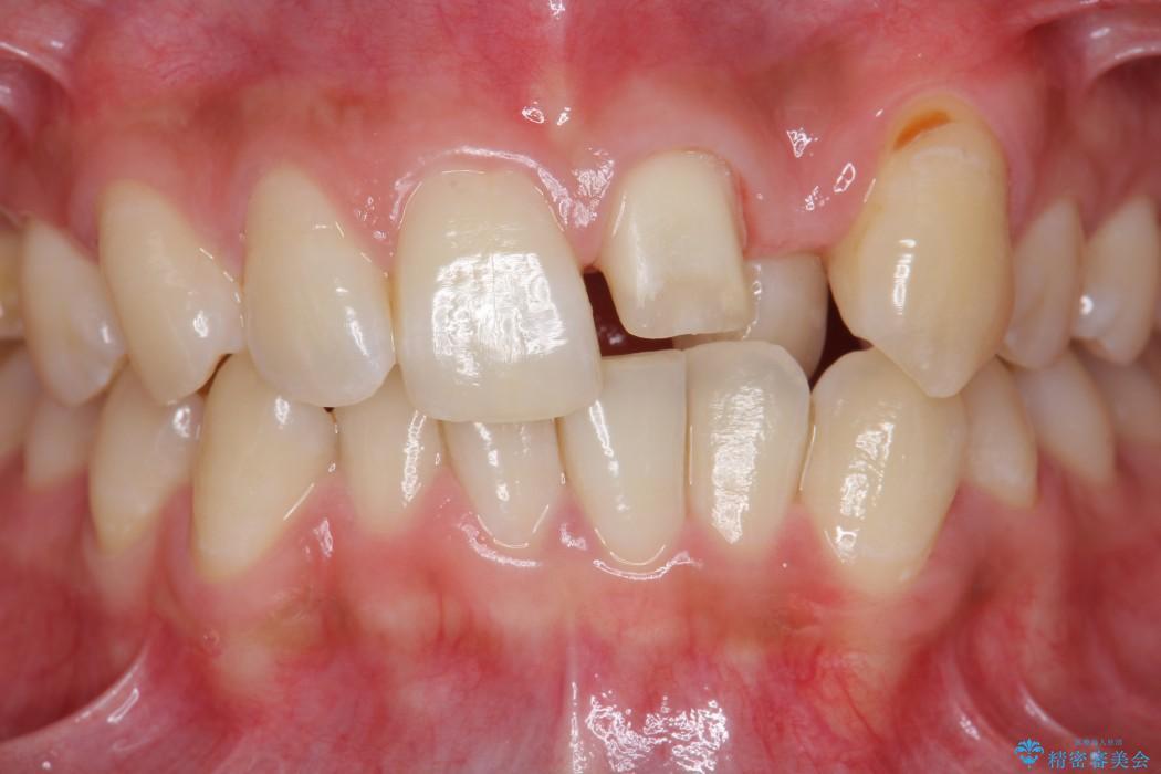 欠けた前歯のセラミック治療 治療中画像