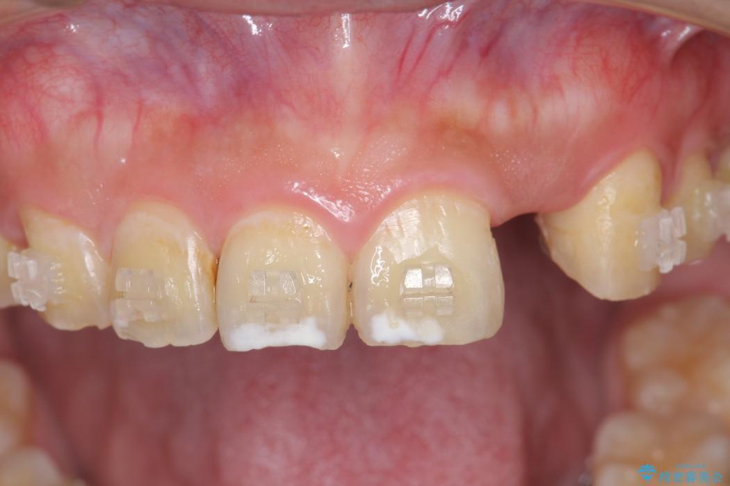 上の前歯のインプラント治療 ビフォー