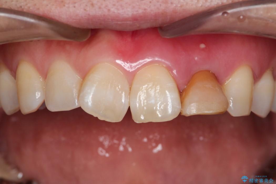 グラグラする前歯のブリッジ治療 ビフォー