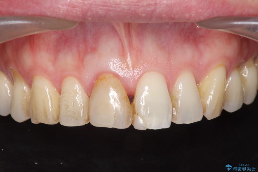 神経が無い歯のセラミック治療 ビフォー