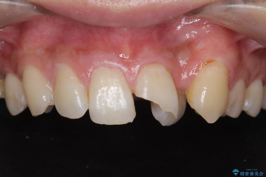欠けた前歯のセラミック治療 ビフォー