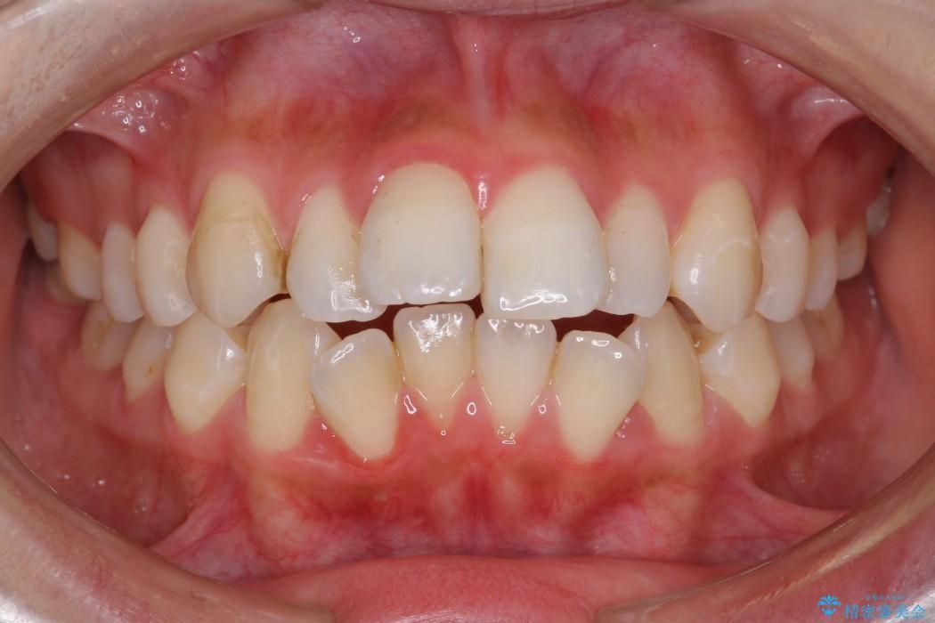 出っ歯(オーバージェット10mm)のワイヤー矯正 ビフォー