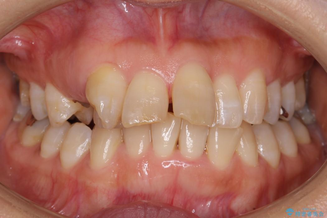 気になる前歯を矯正とセラミックの低予算治療 ビフォー