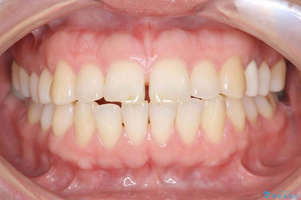 30代女性 出っ歯の再矯正治療 ビフォー