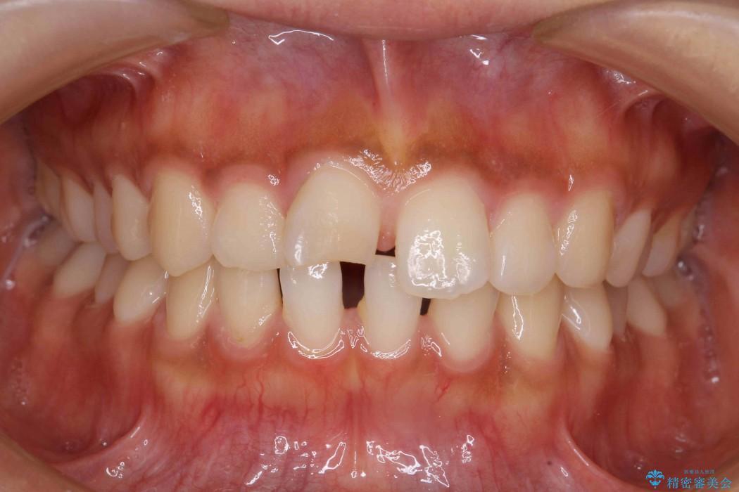 20代女性 すきっ歯の矯正歯科治療 ビフォー