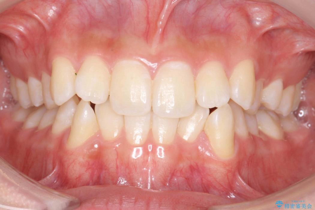 前歯の叢生のインビザライン矯正 ビフォー
