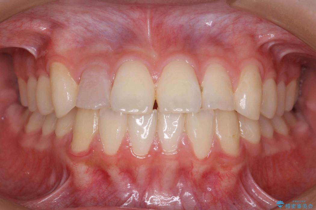 インビザラインで再矯正治療と右上前歯のセラミック治療 ビフォー