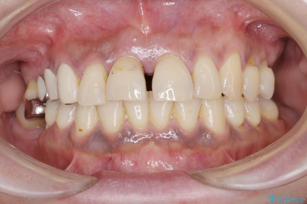 インプラントを用いた重度歯周病治療 ビフォー