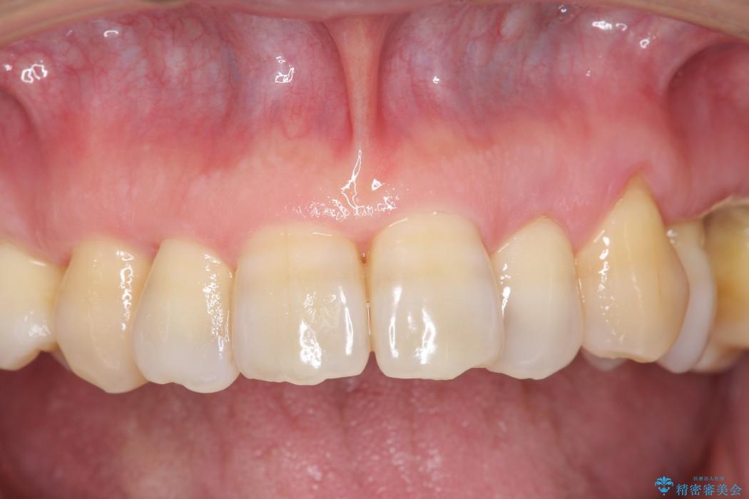 エムドゲインを用いた中等度歯周病治療 ビフォー