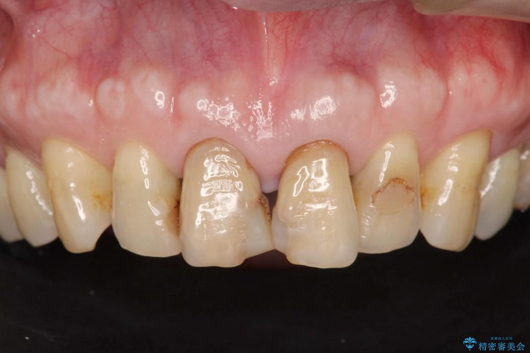 感染根管治療を伴った前歯のセラミック治療 ビフォー