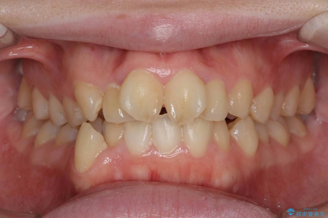 前歯のねじれと出っ歯の矯正 ビフォー