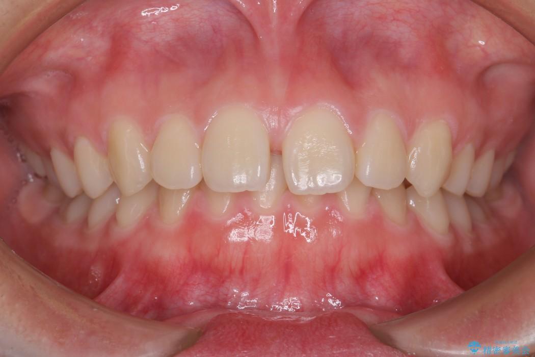 前歯のすき間と過蓋咬合のワイヤー矯正 ビフォー