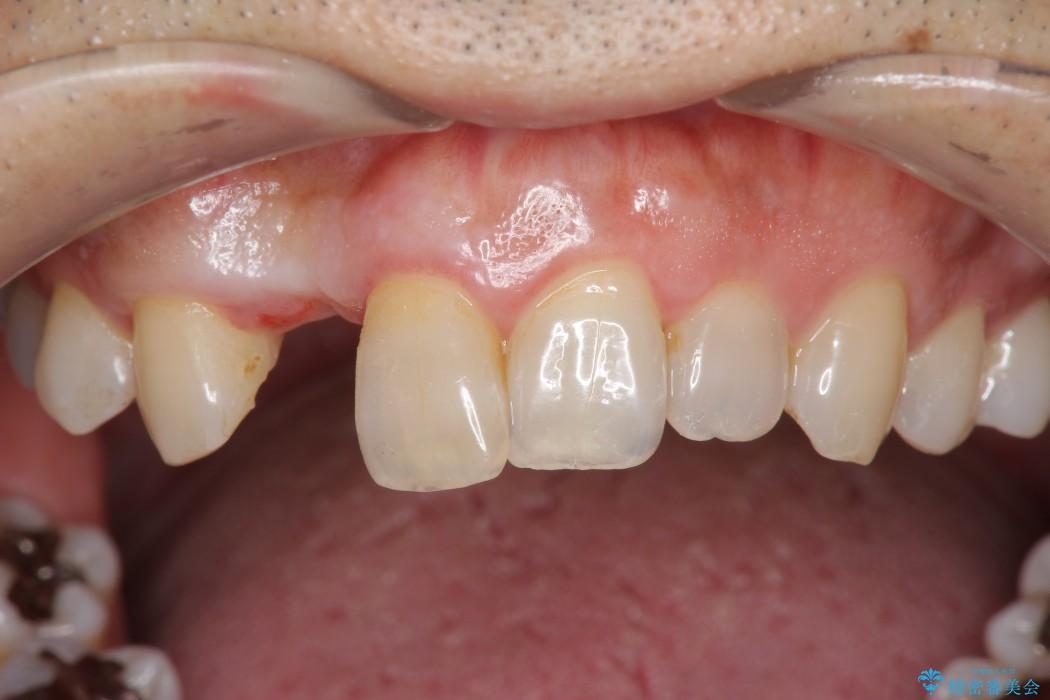 前歯のインプラント治療(インプラント埋入まで) ビフォー