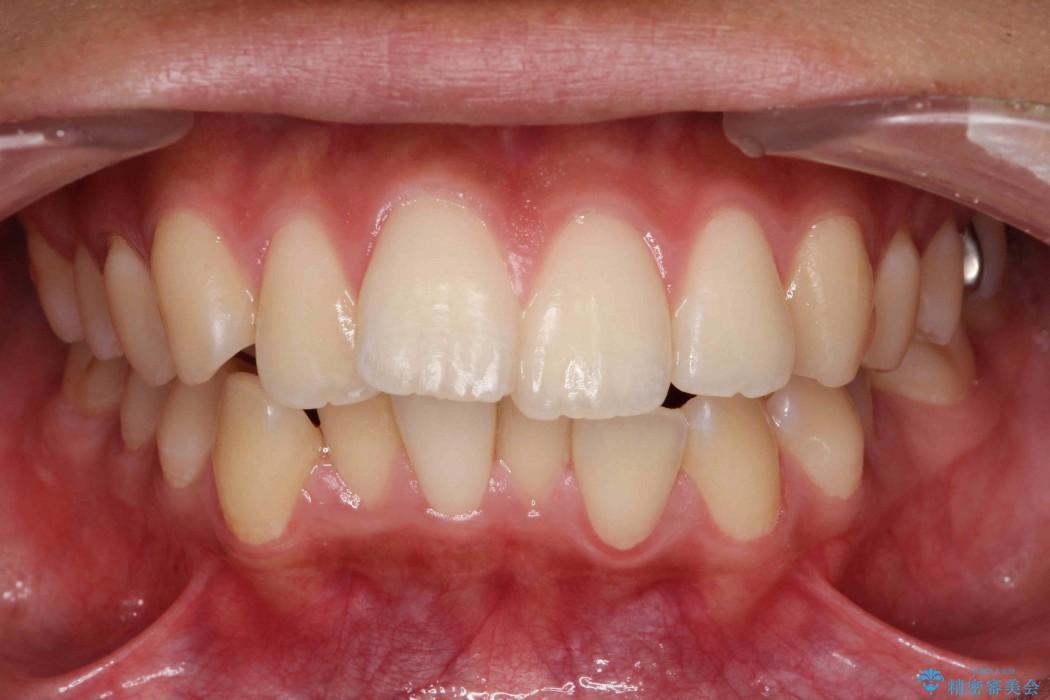 他院で治療した出っ歯の再矯正 ビフォー
