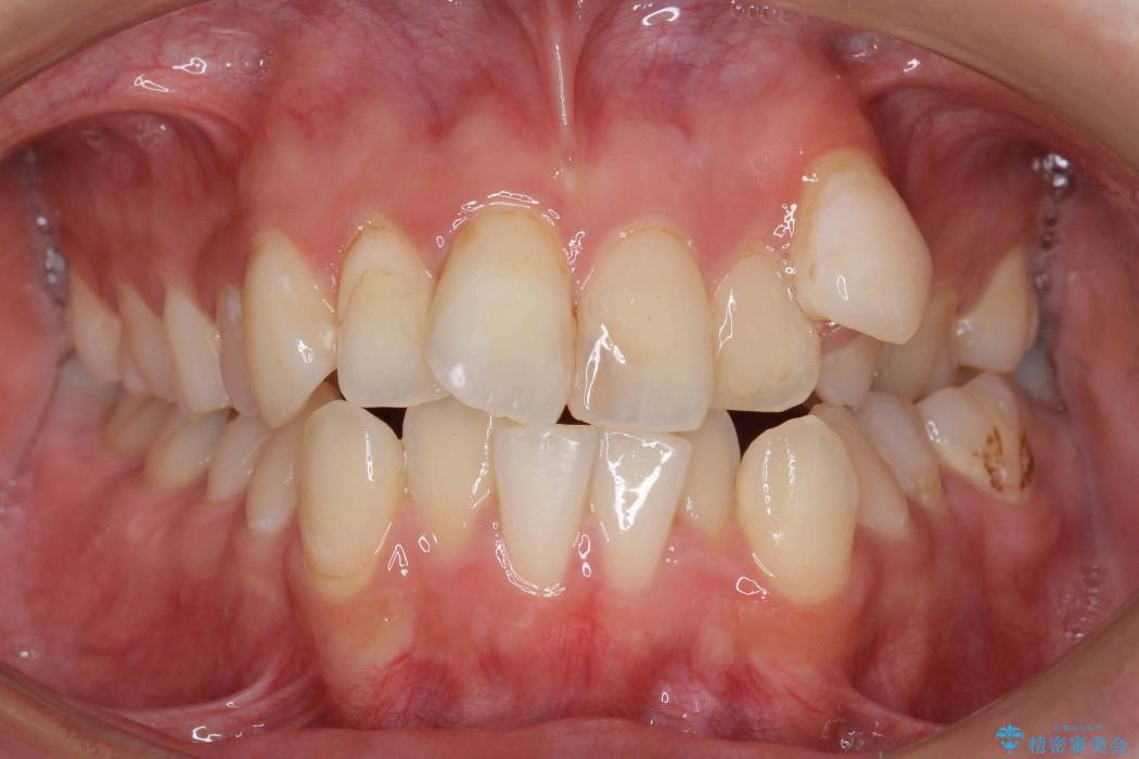 反対咬合(奥歯)のワイヤー矯正治療 ビフォー
