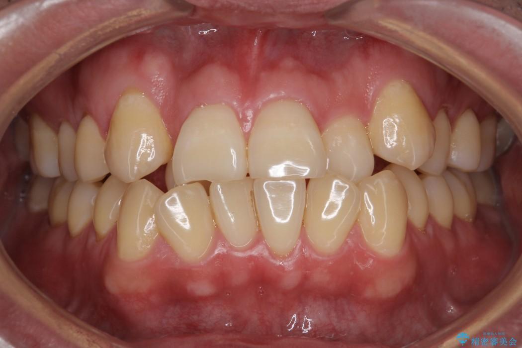 前歯のガタガタと奥歯の噛み合わせの矯正 ビフォー
